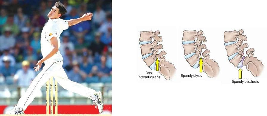 Graphic of fast bowler and stages to Spondylolisthesis (from Pars Interacticularis through to Spondylolysis).