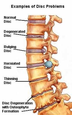 Different disc injuries - Lumbar Disc Injuries - Revive Physiotherapy and Pilates