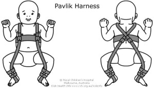 Treatment with a Pavlik Harness. Image courtesy My Hipster Bub.