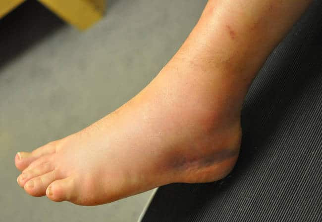 Ankle sprain - swollen ankle - Revive Physiotherapy and Pilates