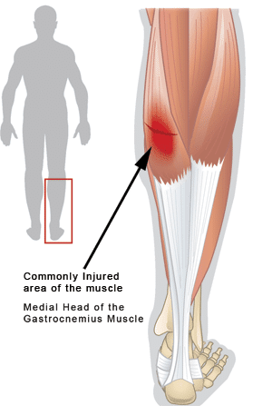 Calf Strain - common injury location - Revive Physiotherapy and Pilates