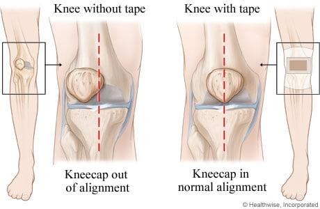 Kneecap alignment