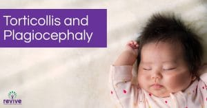 Torticollis and Plagiocephaly - Revive Physiotherapy and Pilates