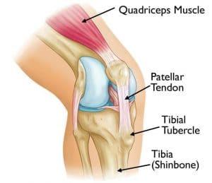 Osgood Schlatter's Disease - Knee pain