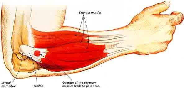Tennis Elbow components