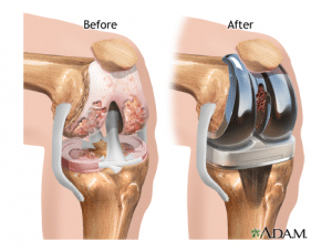 Knee Replacement - Revive Physiotherapy and Pilates