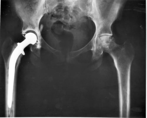 Post hip replacement x-ray