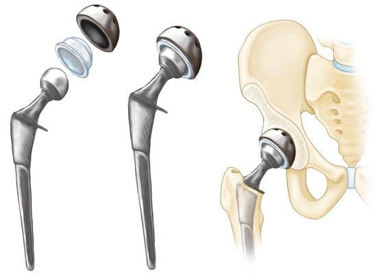 Hip replacement ball joint